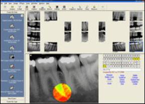 digital-x-rays2