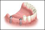 Implant installation