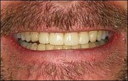 smile-makeover2
